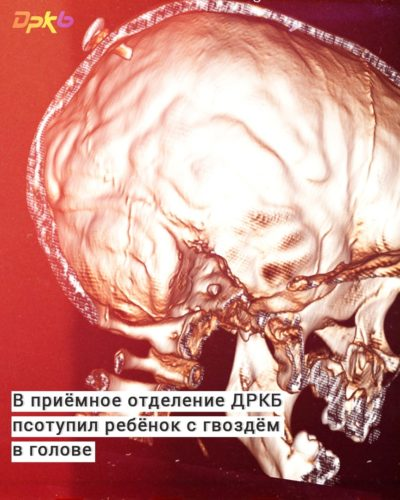 В приемное отделение ДРКБ поступил ребенок с гвоздем в голове